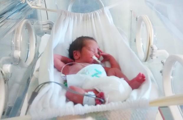 Estudo mostra que bebês prematuros se acalmaram mais facilmente nas redes colocadas na incubadora (Foto: Divulgação)